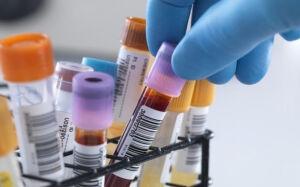 Exames bioquímicos no laboratório estão suspensos temporariamente em Bonito