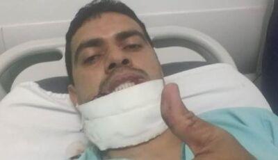 Policial atacado por pitbull consegue tratamento de reconstrução de face