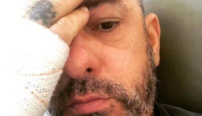 Com costelas e dedo quebrados, Henrique Fogaça pega pneumonia