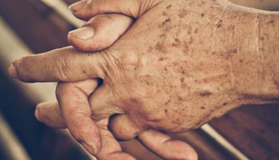 Dermatologistas selecionam pacientes para tratamento e acompanhamento neste sábado em Bonito (MS)