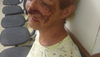 Ativista é agredida e tem pedaço do nariz arrancado após mordida de namorado